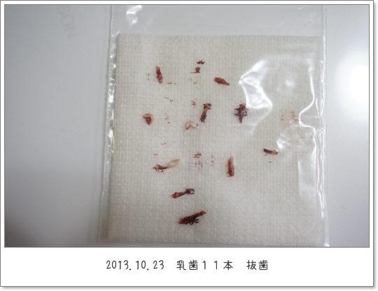 ちろるの乳歯1 13-10