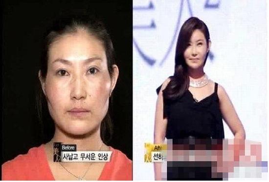 韓国で整形手術を受けた女性の悲惨な現実w