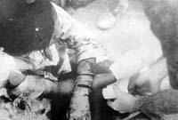 アメリカ軍の手当を受ける負傷した少女(J・ボーンアメリカ海兵隊伍長撮影