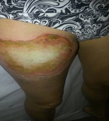 サムスン製のスマホが爆発!18歳のフランス人女性が大火傷を負う