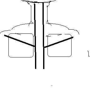 肩甲間部腎