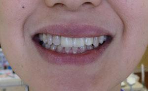 implant0506130.jpg