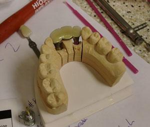 implant0506131.jpg