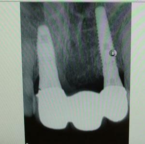 implant0506132.jpg