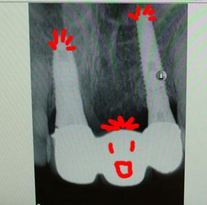 implant0506133.jpg