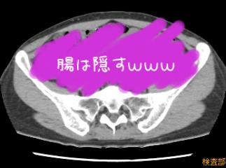 CT-骨盤付近