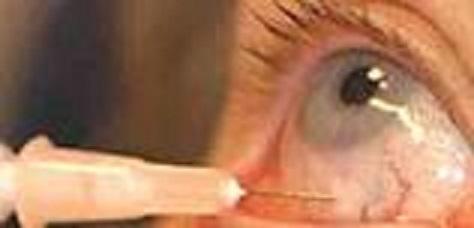 眼球注射1