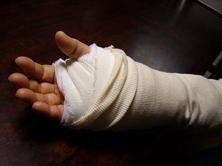 手根管手術