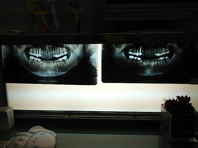 130508 うめだ歯科クリニック