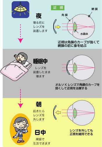 eye-oruso3.jpg