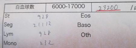 H25年 12/29 血液検査。
