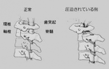 neck_fig6.jpg